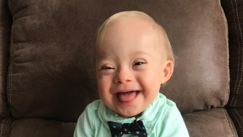 El concurso por el bebé Gerber inició en 2010, Lucas se convirtió en el primero con síndome de down en obtenerlo