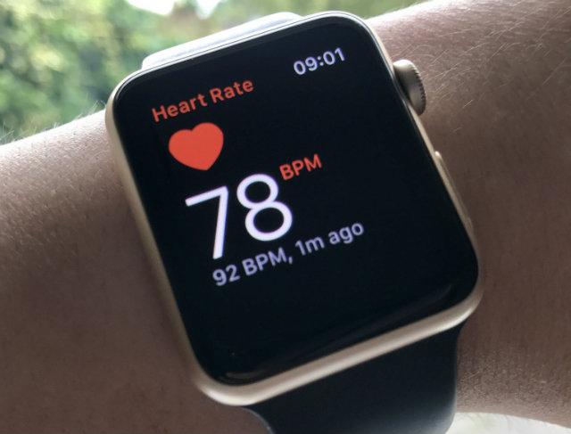 Han surgido preocupaciones sobre el mal uso que se le puede dar a los datos médicos recopilados por el Apple Watch y dispositivos similares (Foto: Create Health)