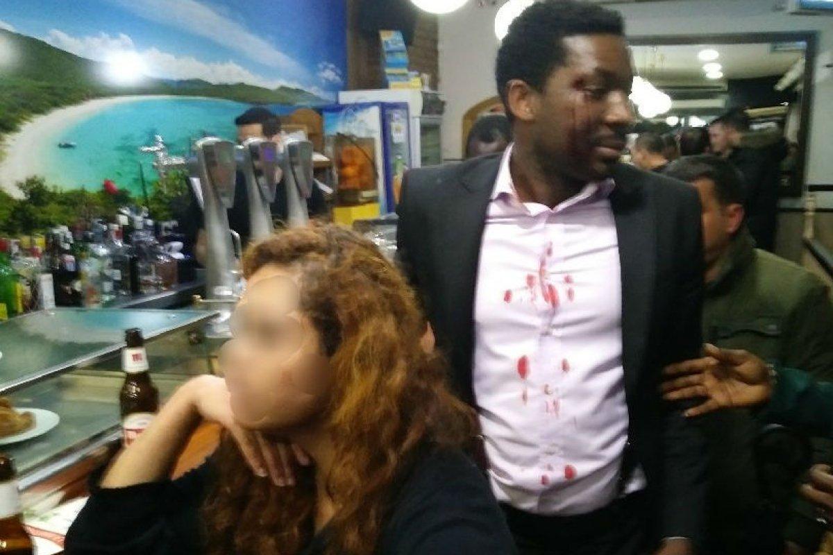 Foto: Marius Makon sufre agresión en Madrid/ Twitter @EltonPrince
